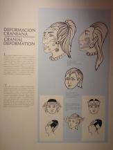 Schönheitsideal: Zurückweichende Stirn